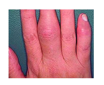 ízületi gyulladás az ujjak falán viszkető fájdalom a lábak ízületeiben